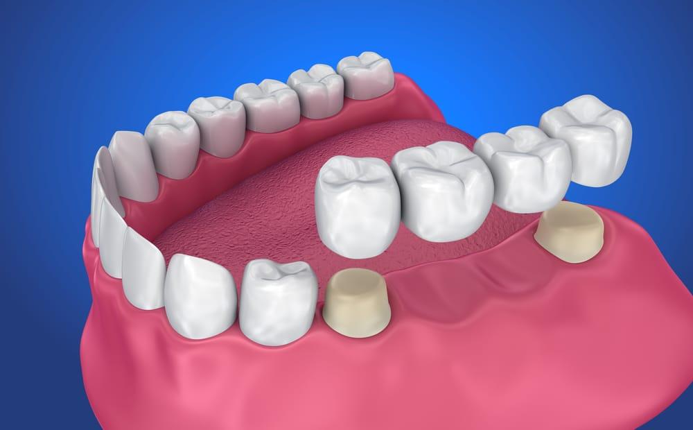 En cada arcada dentaria hay 16 dientes.