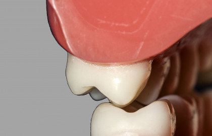 La oclusión dental es el engranaje de los dientes de la arcada superior e inferior.