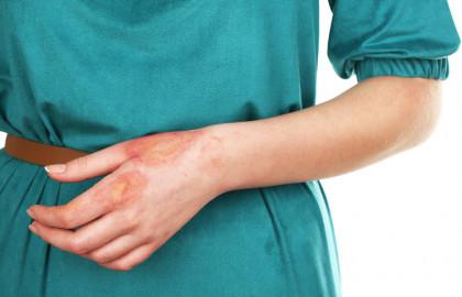 Las quemaduras son lesiones que causan daños o muerte celular. Existen diferentes tipos de quemaduras.