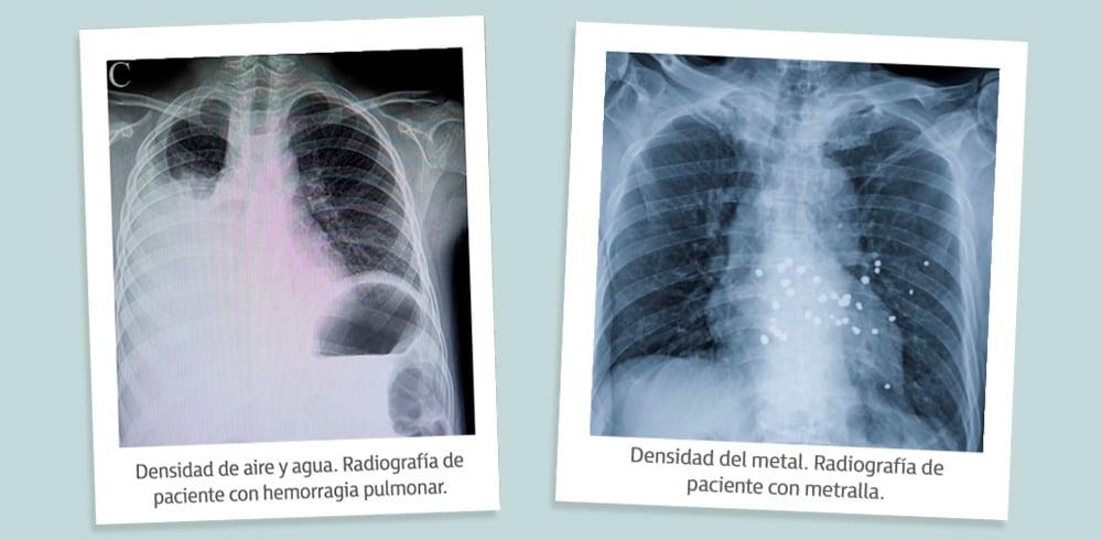 Aire, grasa, agua, calcio y metal son los 5 niveles de densidad radiológica.